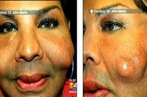 Rajee Narinesingh, de 48 años de edad, mostró su cara en la televisión