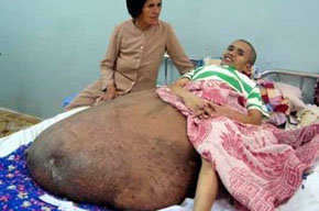 Operado un vietnamita con un tumor de 90 kilos en la pierna