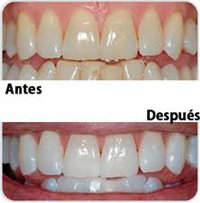 ¿En que consiste el Blanqueamiento Dental?