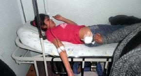 Una de las niñas herida con perdigones por la policía es atendida en el hospital de Collipulli. (Richard Curinao/comunidad mapuche Chilena)