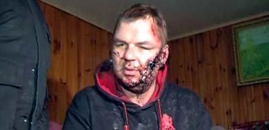 Dmytro Bulatov tras ser encontrado en las afueras de Kiev (Reuters).
