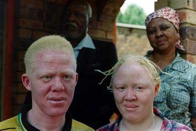Contin�an los asesinatos de albinos en Malaui