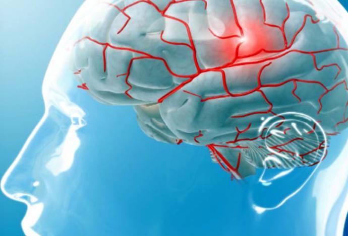 Migraña: descubren una mutación genética que provoca el aumento de la actividad neuronal
