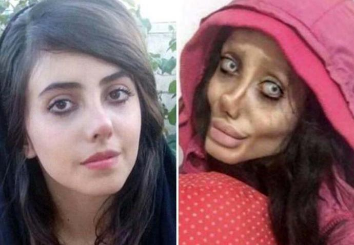 El rostro de Sahar Tabar antes y después de las cirugías plásticas