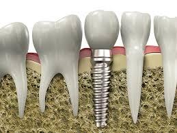 Historia y desarrollo de los implantes dentales