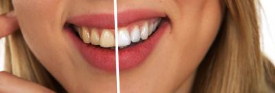¿Sabes por qué se oscurecen los dientes?