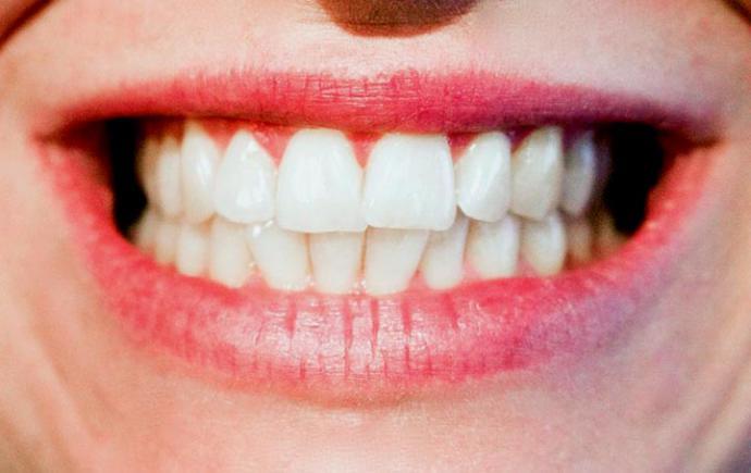 ¿Son todo ventajas en la ortodoncia invisible?