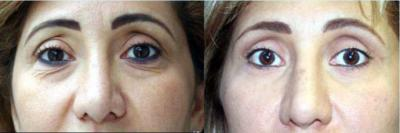 Belleza y salud: con blefaroplastia y sin citrobacter koseri