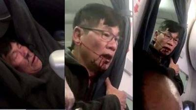 David Dao, el pasajero expulsado de United Airlines. (Foto: Captura)