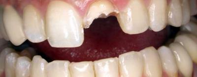 ¿Qué hacer si me rompo un diente de un fuerte golpe?