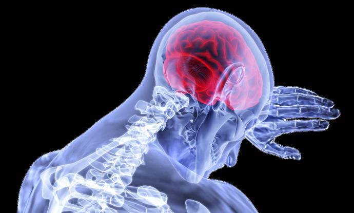 ¿Cuándo debería acudir a un neurocirujano?