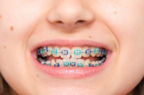 Descubre los signos que demuestran que tus hijos necesitan ortodoncia
