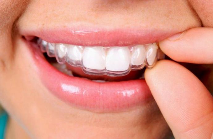 ¿Cuáles son las ventajas de la ortodoncia invisible?