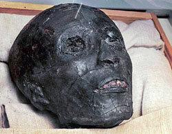 Tutankamón murió por complicaciones de pierna rota y malaria